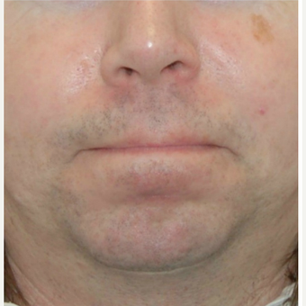 35-44 year old man treated with Rosacea treatments after 3300614