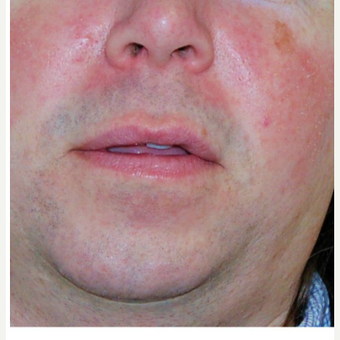 35-44 year old man treated with Rosacea treatments before 3300614