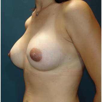 25-34 year old woman treated with Breast Augmentation after 3288200