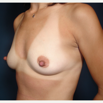 25-34 year old woman treated with Breast Augmentation before 3288200