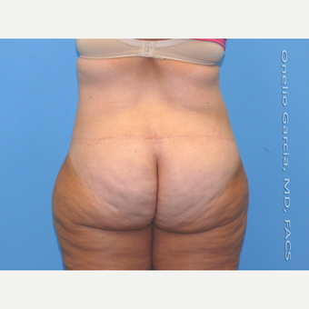 35-44 year old woman treated with Body Lift after 3041506