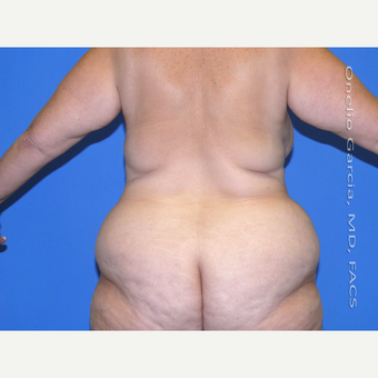 35-44 year old woman treated with Body Lift before 3041506