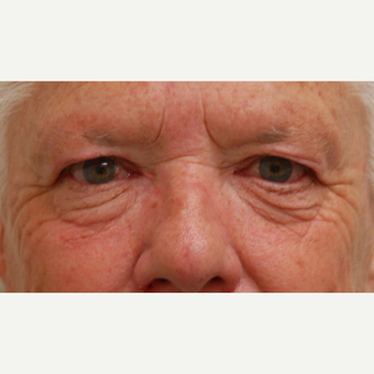 65-74 year old woman treated with Eyelid Surgery before 3310872