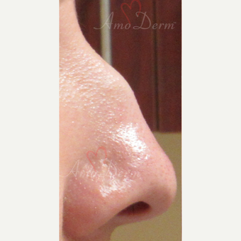 25-34 year old woman treated with Non Surgical Nose Job before 3381453