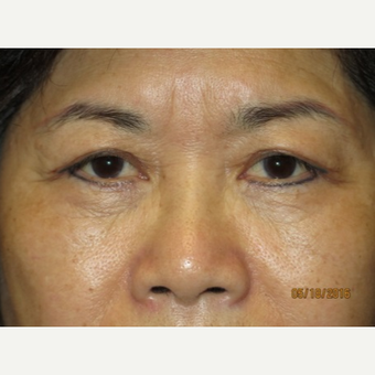 55-64 year old woman treated with Eyelid Surgery after 3026627