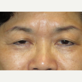 55-64 year old woman treated with Eyelid Surgery before 3026627