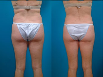 39-year-old woman treated with Liposuction. after 574496