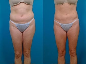 39-year-old woman treated with Liposuction. before 574496