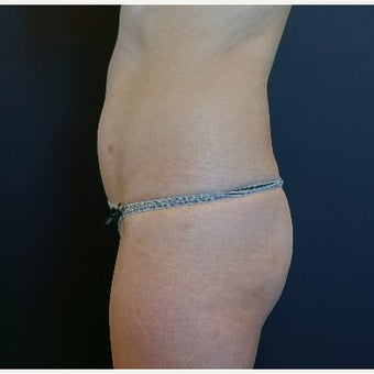 25-34 year old woman treated with Butt Implants and Fat Transfer before 2664000