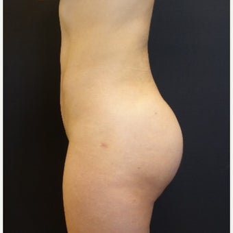 25-34 year old woman treated with Butt Implants and Fat Transfer after 2664000