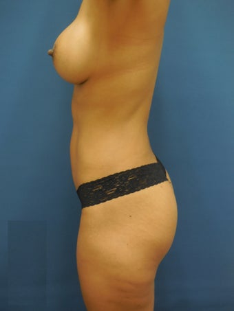 Breast augmentation with mentor implants , liposculture with buttox augmentationn  1287130