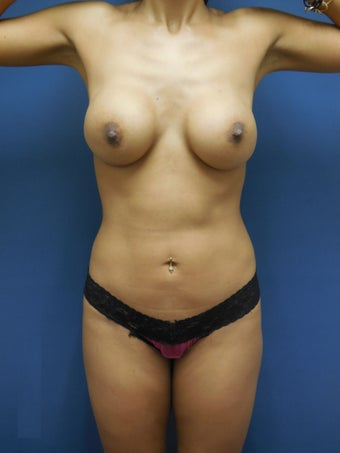 Breast augmentation with mentor implants , liposculture with buttox augmentationn  after 1287130