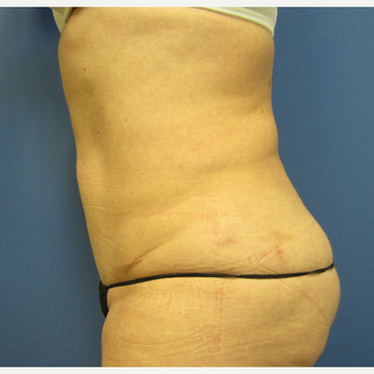 45-54 year old woman treated with Tummy Tuck after 3057359