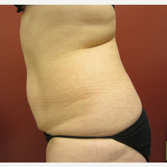 45-54 year old woman treated with Tummy Tuck before 3057359