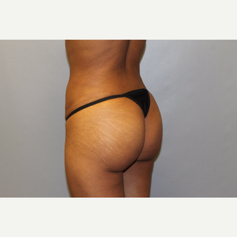 25-34 year old woman treated with Brazilian Butt Lift after 3565722