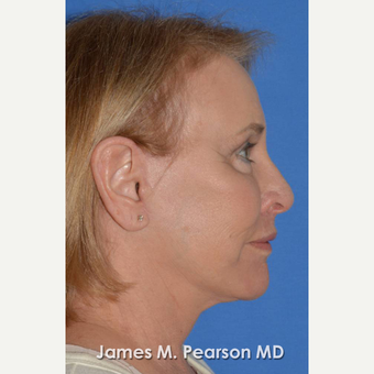 55-64 year old woman treated with Facelift after 3802266