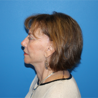 65-74 year old woman treated with Facelift after 3281295