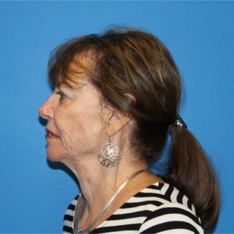 65-74 year old woman treated with Facelift before 3281295