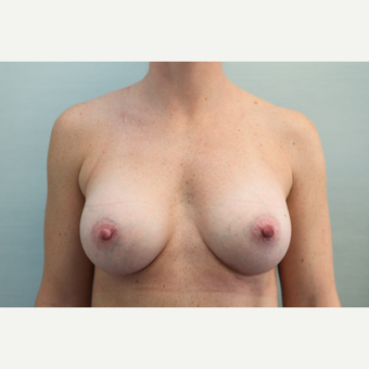 35-44 year old woman treated with Breast Augmentation after 3768073