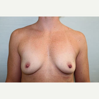 35-44 year old woman treated with Breast Augmentation before 3768073
