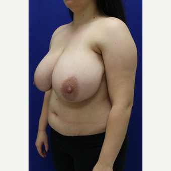 18-24 year old woman treated with Breast Reduction before 3384554