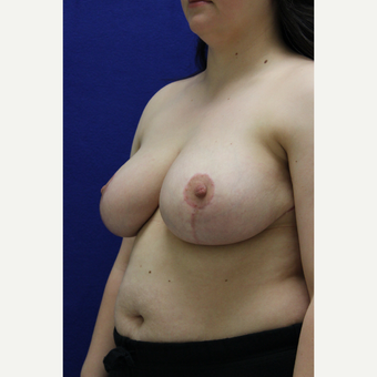 18-24 year old woman treated with Breast Reduction after 3384554