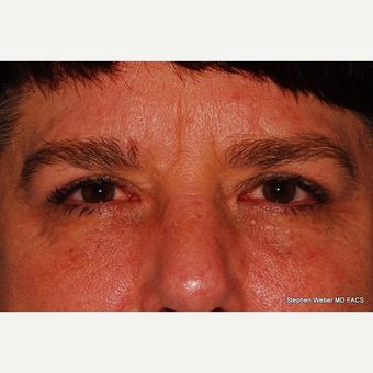 55-64 year old woman treated with Eyelid Surgery after 3624430