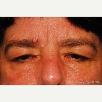 55-64 year old woman treated with Eyelid Surgery before 3624430