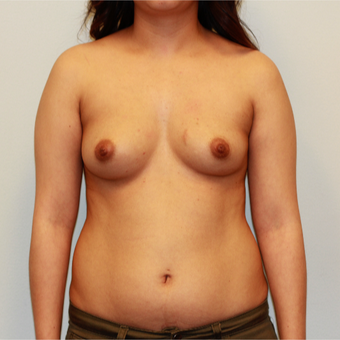 18-24 year old woman treated with Breast Augmentation before 3563866