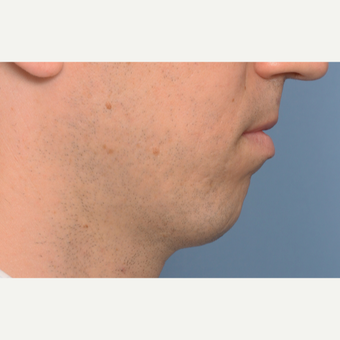 35-44 year old man treated with Chin Surgery before 3360989