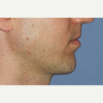 35-44 year old man treated with Chin Surgery after 3360989