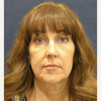 55-64 year old woman treated with Facelift before 3726948