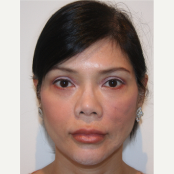 35-44 year old woman treated with Fat Transfer to the face before 3213882