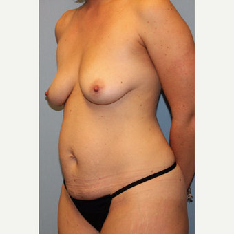 35-44 year old woman treated with Mommy Makeover before 3588586