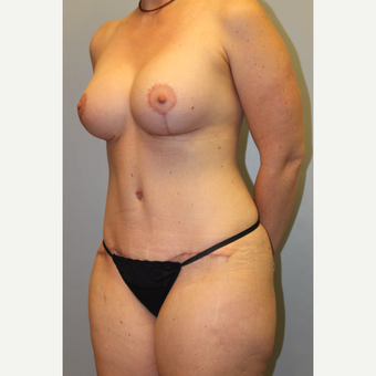 35-44 year old woman treated with Mommy Makeover after 3588586