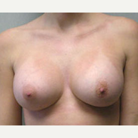 Breast Augmentation after 3681143