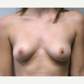 Breast Augmentation before 3681143