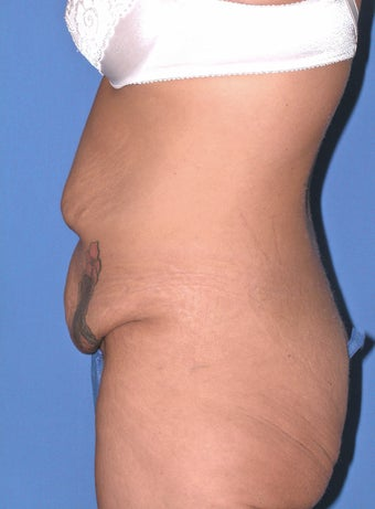 25 year old woman with tummy tuck 1169696