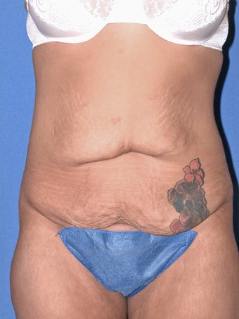 25 year old woman with tummy tuck before 1169696