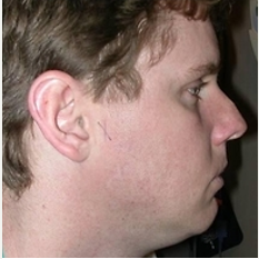25-34 year old man treated with Rhinoplasty before 3108924