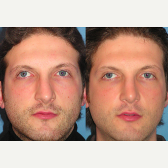 35-44 year old man treated with Rhinoplasty before 3521745