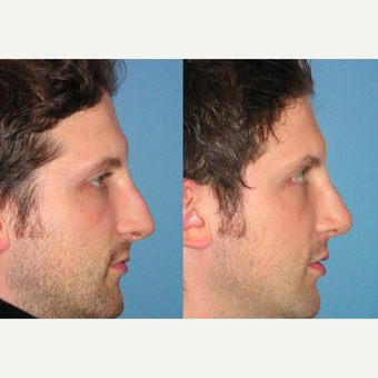 35-44 year old man treated with Rhinoplasty after 3521745