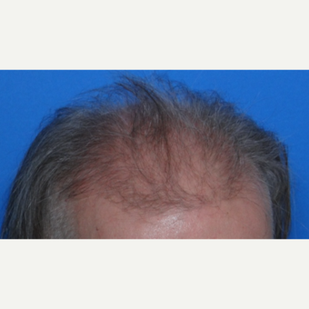 45-54 year old man treated with Hair Transplant before 3065528