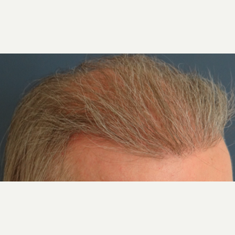 45-54 year old man treated with Hair Transplant after 3065528