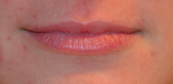 18-24 year old woman treated with Restylane Silk before 1756827