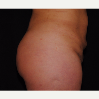 35-44 year old woman treated with Brazilian Butt Lift after 3100225