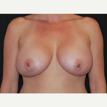 35-44 year old woman treated with Breast Implants after 3650974