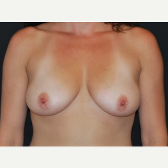 35-44 year old woman treated with Breast Implants before 3650974