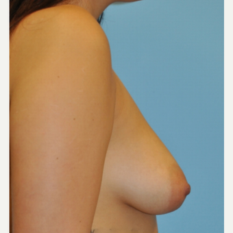 21 year old woman, B to D cup Breast Augmentation, 350 cc HP filled to 400 cc before 3489736