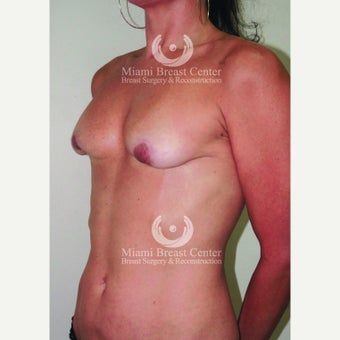 35-44 year old woman with Breast Implant Removal and fat transfer before 2217012